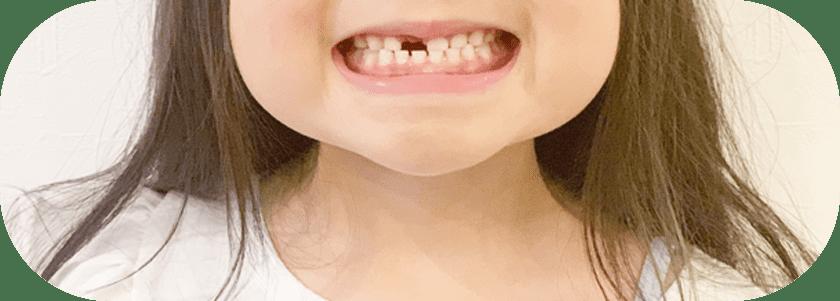 歯を見せる子供
